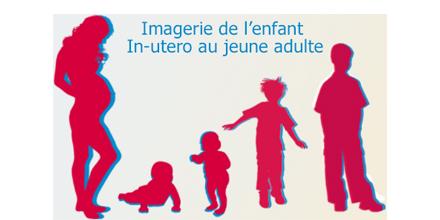 Pediatric imaging: Bouchra HABIB-GERYES's testimonial on RDM