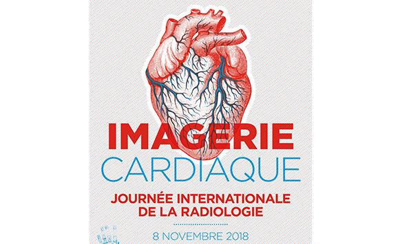 La Journée Internationale de la Radiologie (IDOR2018) célèbre cette année l'imagerie cardiaque